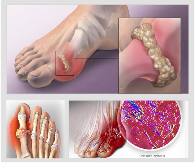 Hộ Phong Tán Thống - Thảo Dược Trị Bệnh Gout
