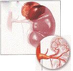 Bệnh Gout có thể gây sỏi thận, thận ứ nước ứ mủ, suy thận (như tiểu ra máu, sạn đường tiểu, suy thận cấp hay mãn tính), tăng huyết áp, tai biến mạch máu não, nhồi máu cơ tim