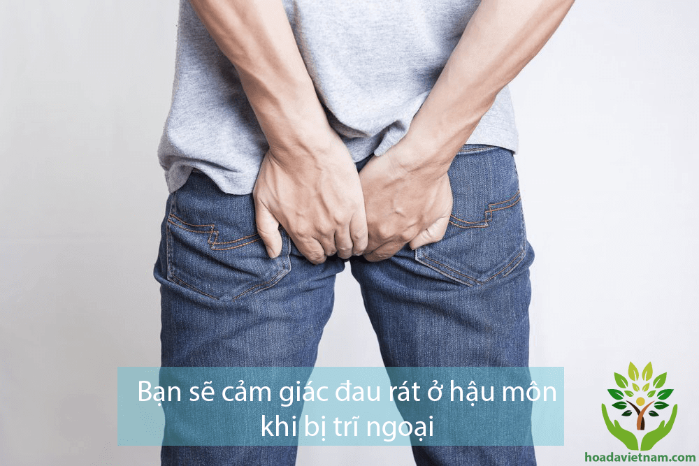 biểu hiện của bệnh trĩ ngoại
