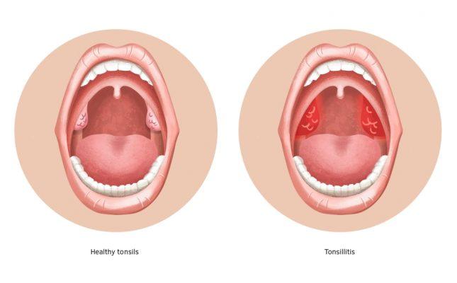 viêm họng và viêm amidan