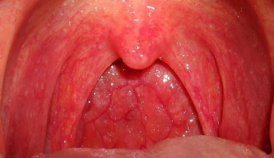 viêm họng mãn tính