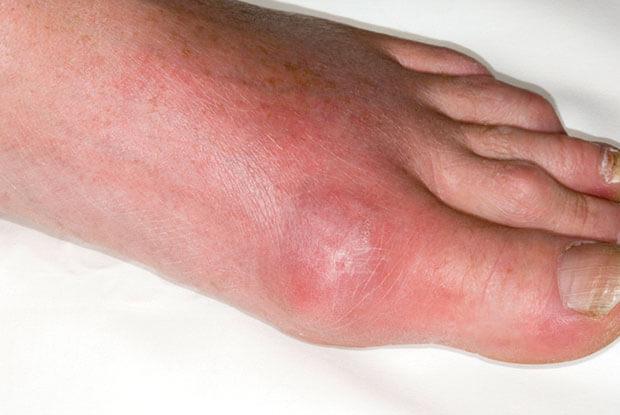cách trị bệnh gout bằng thuốc nam