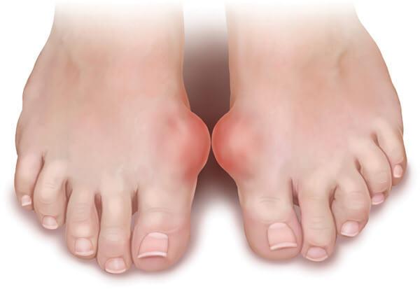 thuôc nam trị bệnh gout
