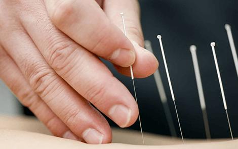 điều trị bệnh xương khớp bằng y học cổ truyền