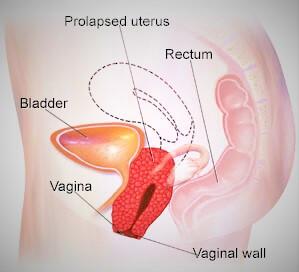 bị sa tử cung khi mang thai