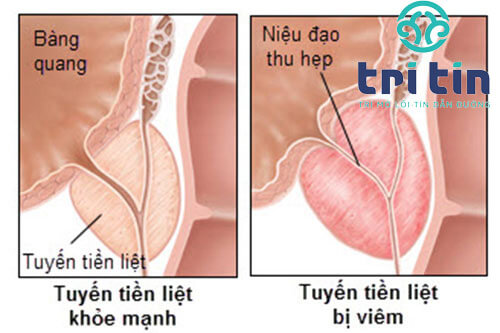 Nguyên nhân tiểu buốt tiểu nhiều lần
