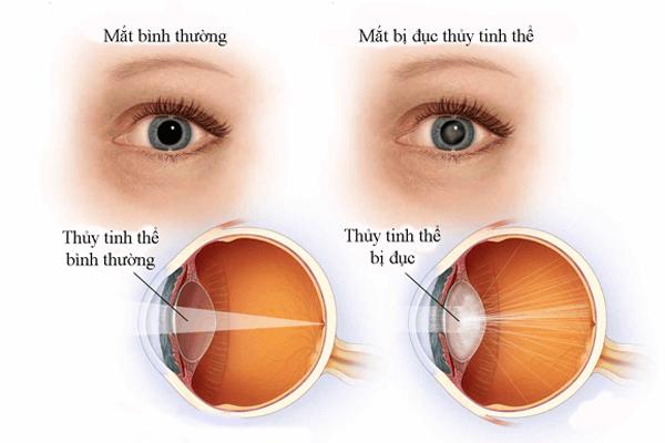 biến chứng bệnh tiểu đường về mắt