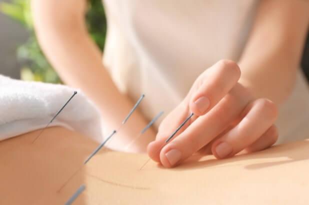 Châm cứu là biện pháp trị đau thần kinh tọa mà không cần tiến hành xâm lấn