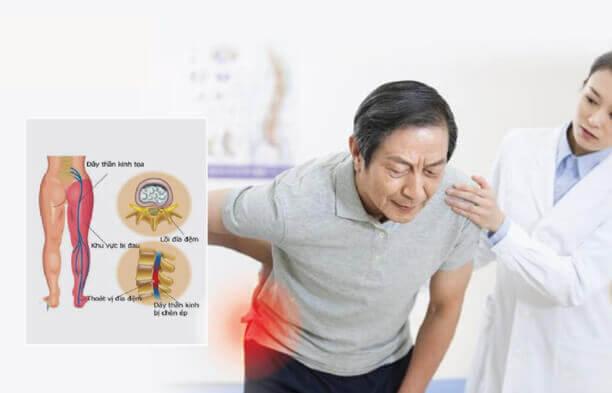 Đau dây thần kinh tọa là căn bệnh rất phổ biến ở người lớn tuổi