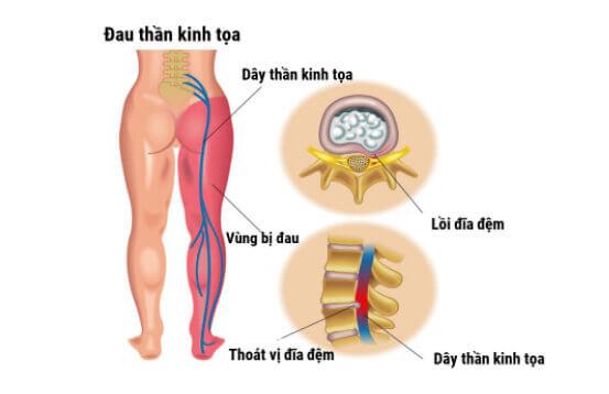 Tùy thuộc vào nguyên nhân và tình trạng bệnh mà đau thần kinh tọa được chia thành nhiều thể khác nhau