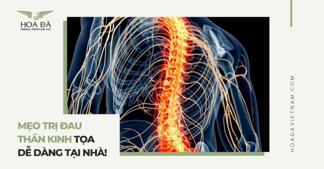 6 Mẹo trị đau thần kinh tọa tại nhà dễ dàng tại nhà!